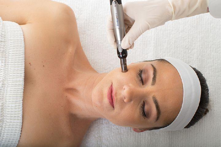 мезотерапия - Фракционная микроигольчатая мезотерапия